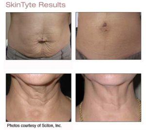 SkinTyte (1)