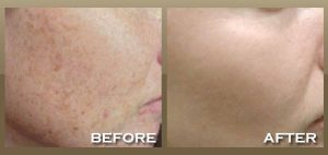 ipl-photofacial-brown-spots