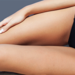 20% OFF Body Freeze Treatments for Slimming & Cellulite