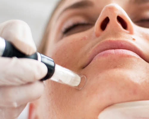 Microneedling Chin with DERMAPEN