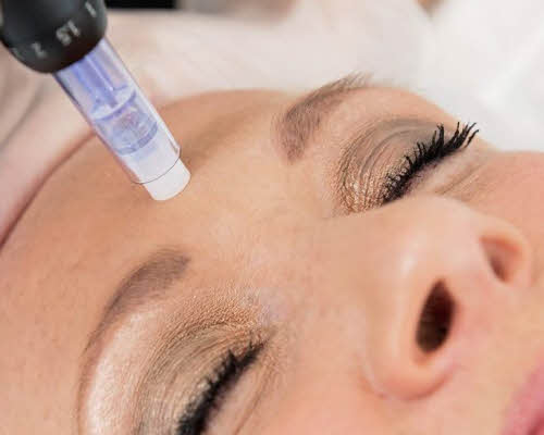 Microneedling Forehead with DERMAPEN