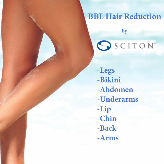 Laser Hair Removal with BBL
